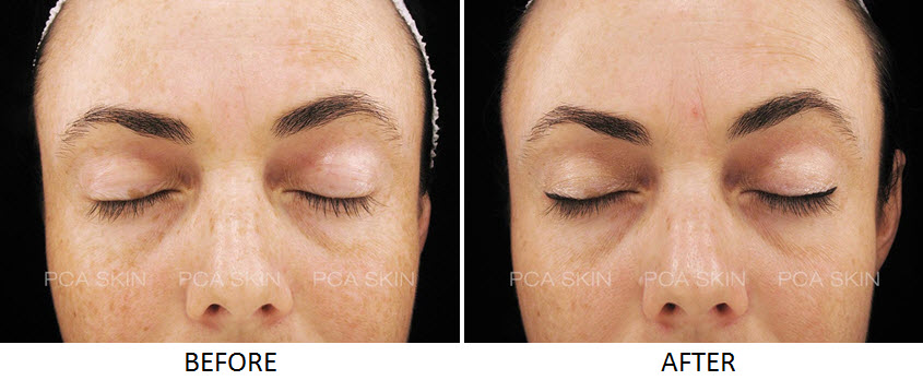 Salicylic Acid Before And After