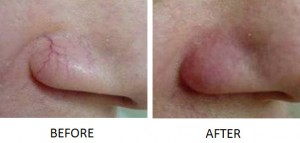 Thermo-Lo facial vein treatment