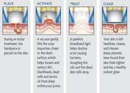 Isolaz Light Therapy- How it works