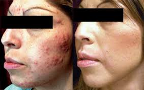 Isolaz Light Therapy- Before & After