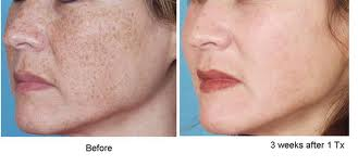 Anti Aging Treatments Natural Skin Care Clinic