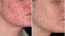 Isolaz Acne Treatment