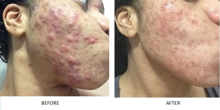 Acne before and after 3