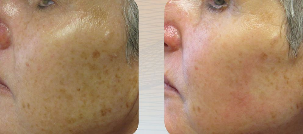 DermaPen sun damage