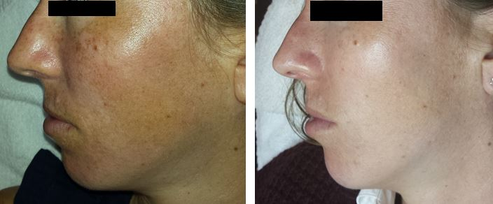 MicroPeel before and after 2