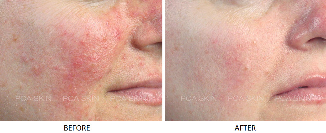 Rosacea peel before and after