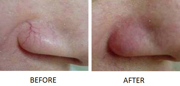 Thermo-Lo facial vein treatment
