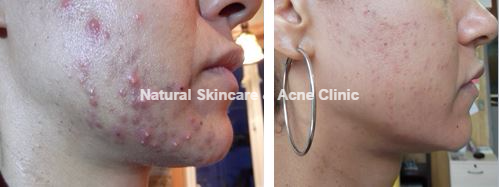 acne before and after wm